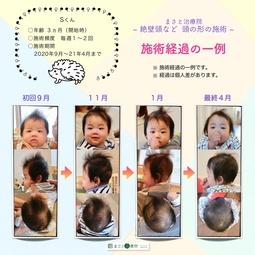 頭の形 斜頭症
